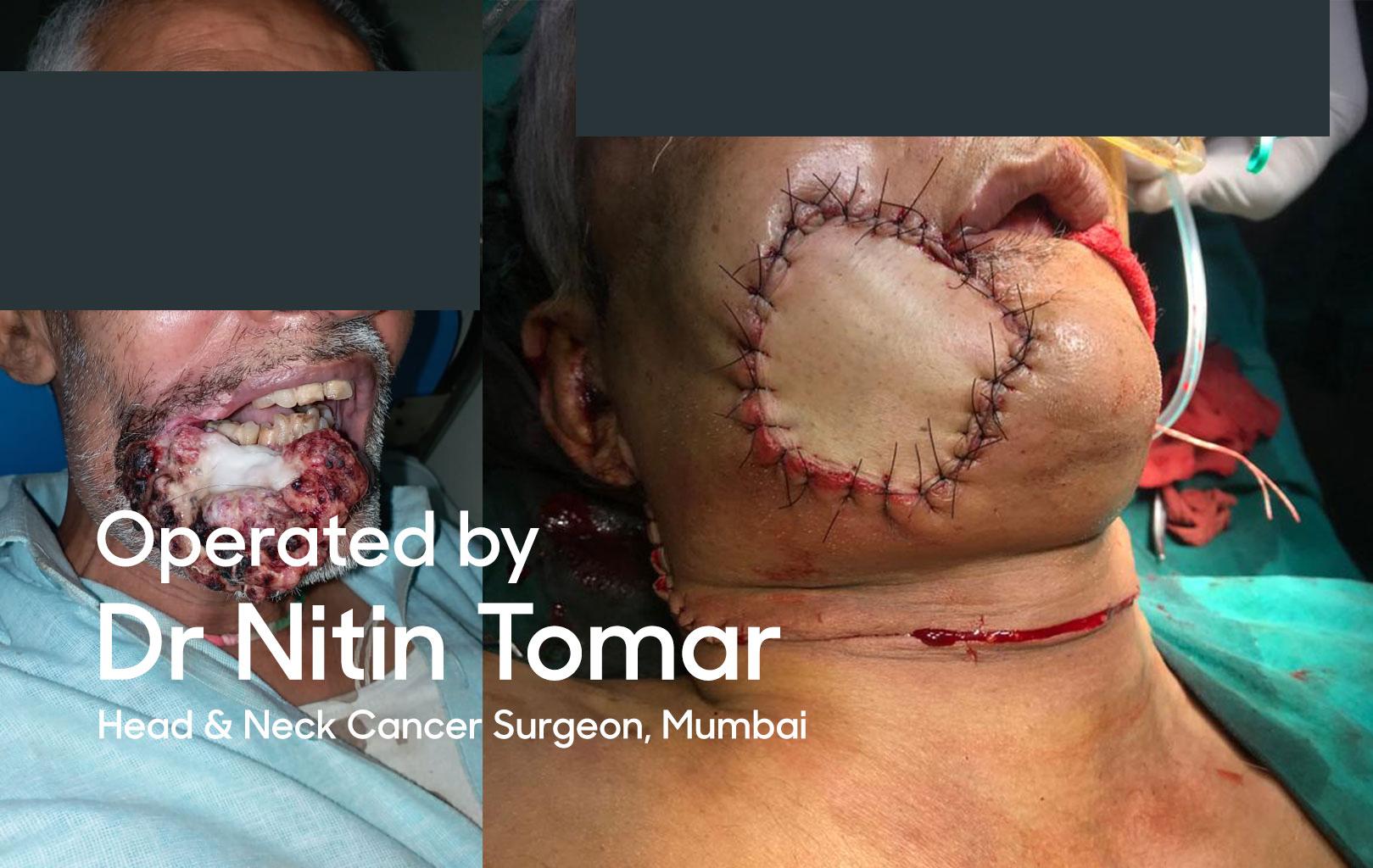 Best Oral Cancer Surgeon, Mumbai